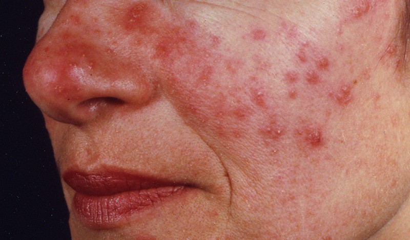 woman with acne-type rosacea on face
